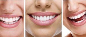 Experiența mea când m-am decis să-mi pun implant dentar